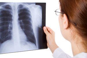 radiografia-de-torax